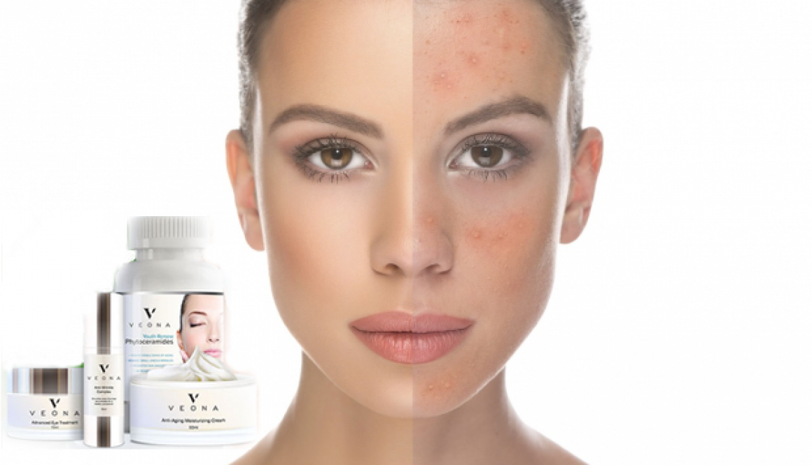 Discounts on Veona™ SkinCare Cream Products – Singapore & Malaysia
